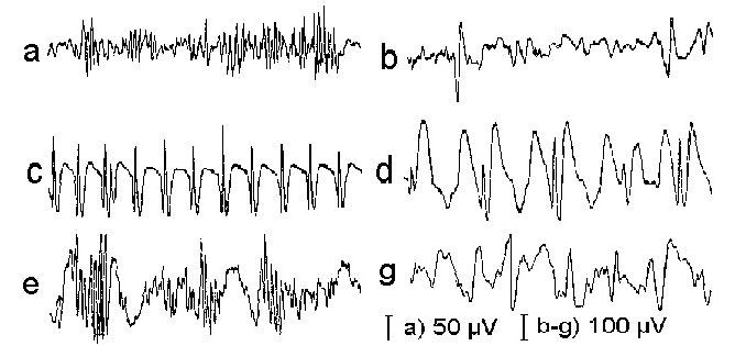 Формы эпилептической активности на ЭЭГ
